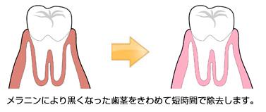 メラニン(歯茎の黒ずみ)除去