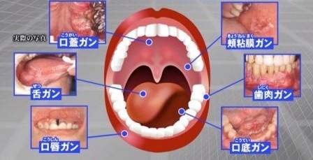 口腔ガン-450x252